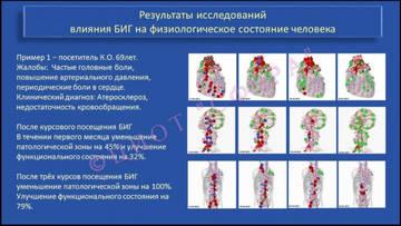 http://s4.uploads.ru/t/9n34u.jpg